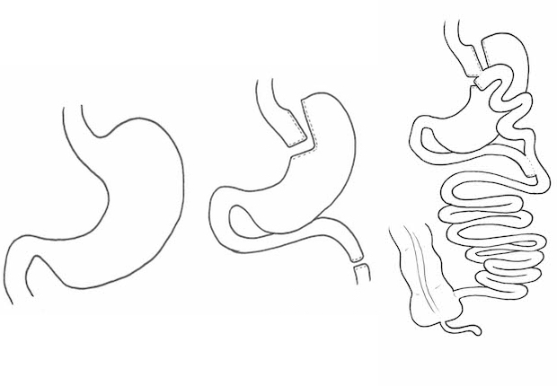 Gastric bypass