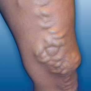 oorzaak spataderen benen