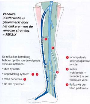 oppervlakkige flebitis behandeling